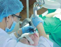 Sá»a chữa máy laser 3 chức năng: triệt lông – xóa xăm – trẻ hóa uy tín Hà Nội – Toàn Quốc